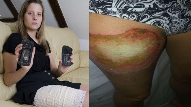 La joven de 18 años sufrió una quemadura en su pierna. (Foto: lematin.ch)