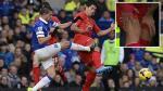 Jugador casi le rompe la rodilla a Luis Suárez y solo recibe amarilla - Noticias de kevin mirallas