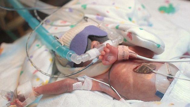 Primer año de bebé prematuro Ward Miles Miller conmueve en ...