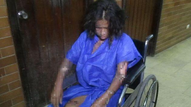 Mirtha Cahua resultó con graves quemaduras en varias partes de su cuerpo. (Difusión)