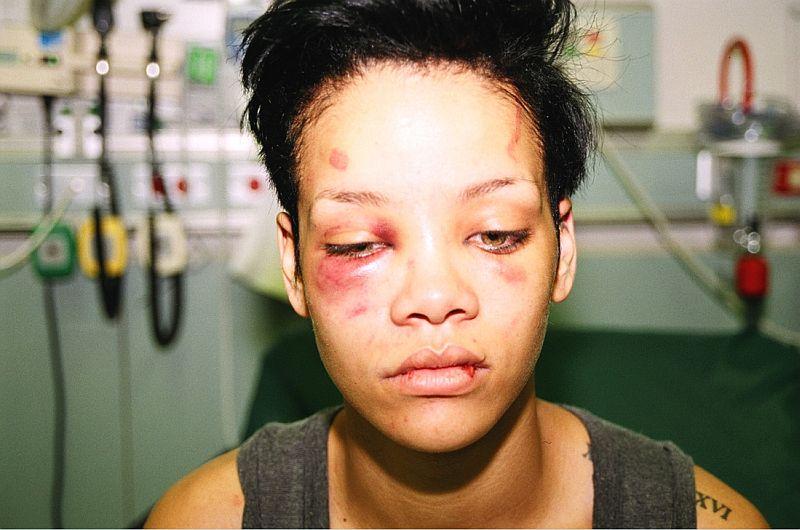 10 famosas que fueron golpeadas por sus parejas