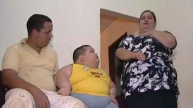 Brasil, Obesidad, Hipotiroidismo, Síndrome de Prader-Willi