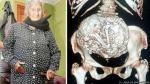 Chile: Descubren que anciana de 92 años tenía feto momificado en su vientre - Noticias de valparaiso