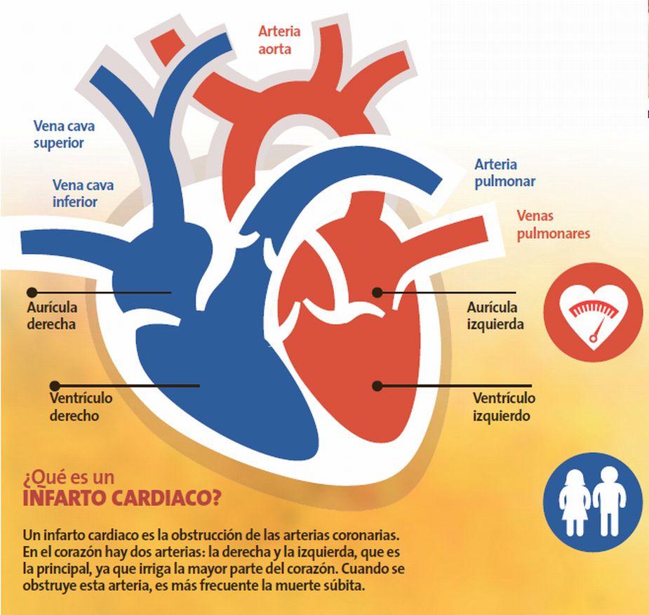 Riesgo de sufrir un infarto crece en adultos jóvenes por