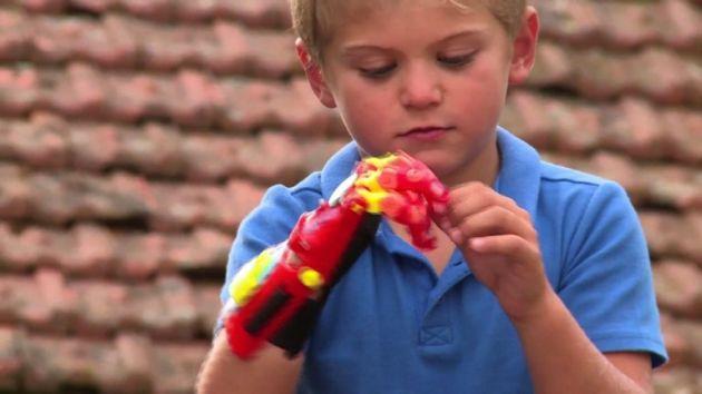 Maxence, primer niño francés que tendrá una prótesis impresa 3D de estilo superhéroe [Video]