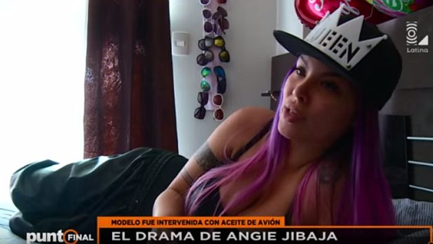 Angie Jibaja está postrada en cama debido a que le inyectaron aceite de avión en glúteos. (Latina)