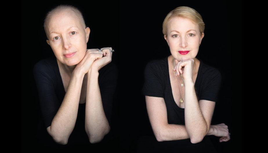 Estos retratos capturan la dura lucha contra el cáncer (Robert Houser)