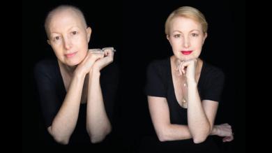 Estos inspiradores retratos capturan la dura lucha contra el cáncer [Fotos]