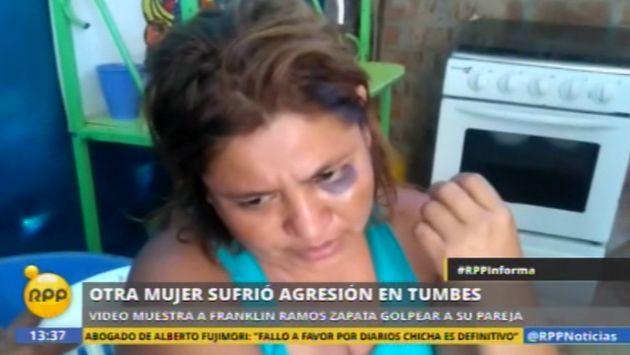 Resultado de imagen para mujer golpeada
