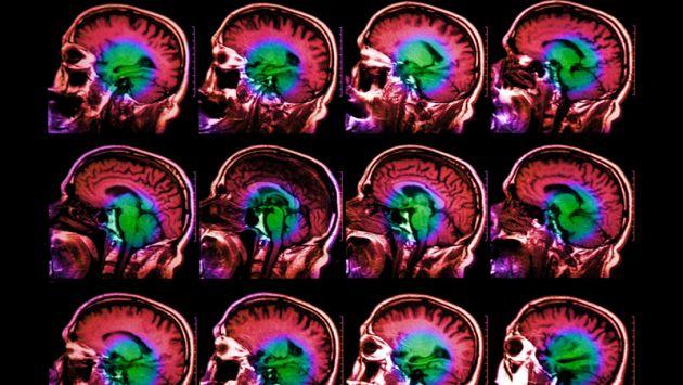 Investigadores descubren un gen que envejece el Cerebro (Getty Images)