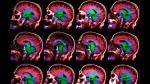 ¿Por qué los cerebros de algunas personas envejecen más rápido que el de otras? - Noticias de barco