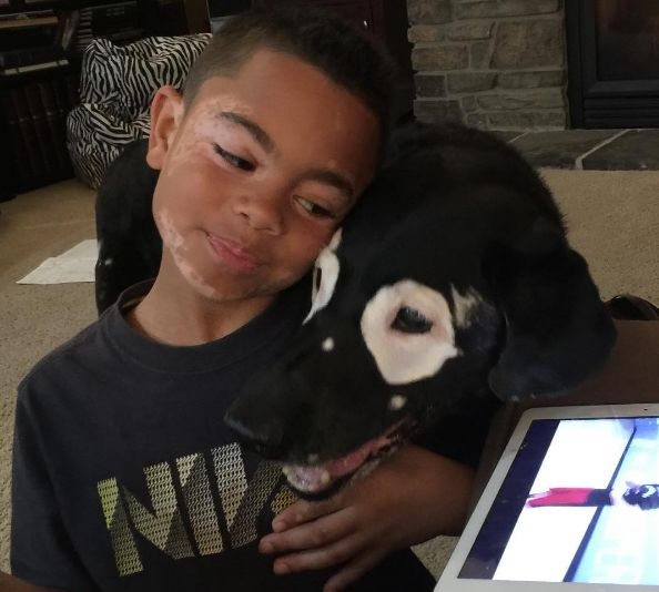 Niño vence depresión al ver su enfermedad en un perro