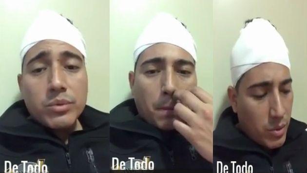 Pedro Loli contó los minutos de terror que se vivió en el bus tras cuádruple choque en Arequipa. (Instagram)