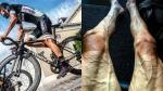 Así quedaron las piernas de un ciclista tras recorrer gran parte del Tour de Francia - Noticias de ciclistas