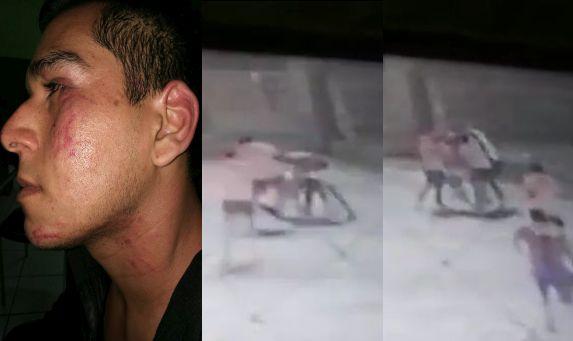 Así quedó Tony Allemant tras la brutal agresión de la que fue víctima en una cancha de fulbito de Surquillo. (Facebook/Captura de video)